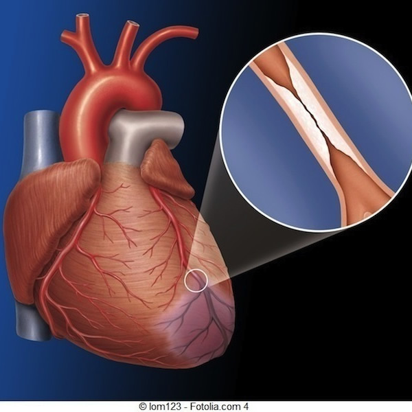 Doença isquêmica do coração