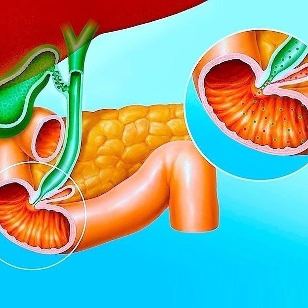 Doença do intestino